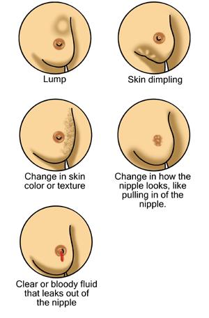 En_Breast_cancer_illustrations